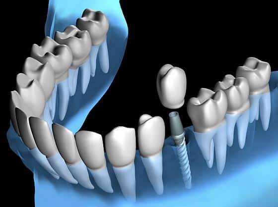 implant-dentaire-definition-schema-vis-pilier-prothese